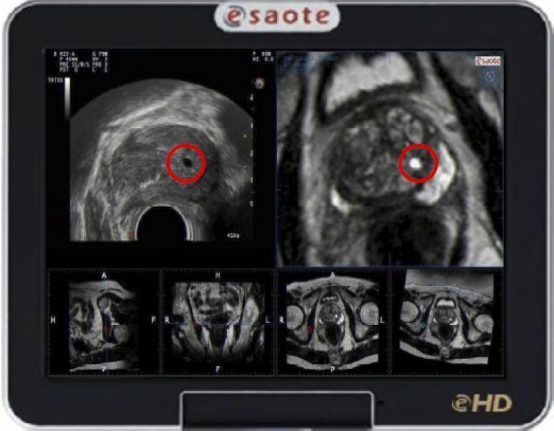 rm - multiparametrica transretal da prostata