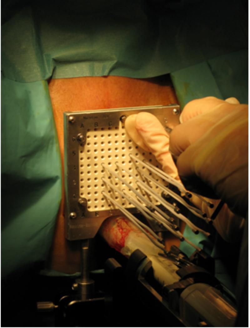 La combinación de braquiterapia y radioterapia en el