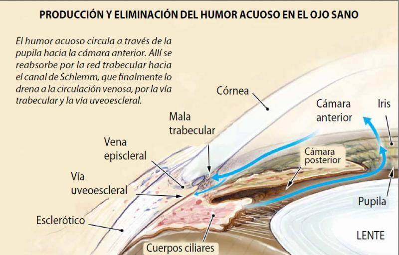 El tratamiento del glaucoma se centra en detener los procesos ...