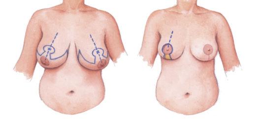 mamoplastía-de-reducción