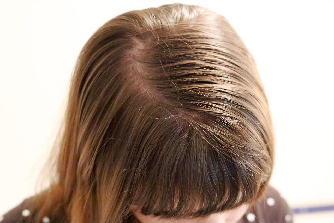 como eliminar la caspa grasosa del cuero cabelludo