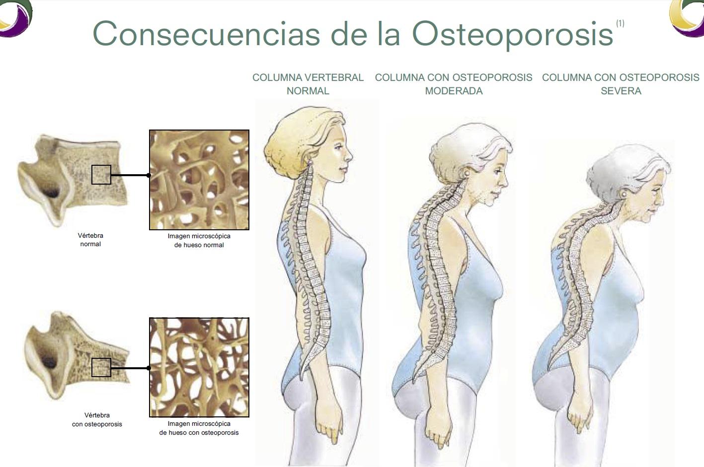 Como tratar la osteoporosis en la columna
