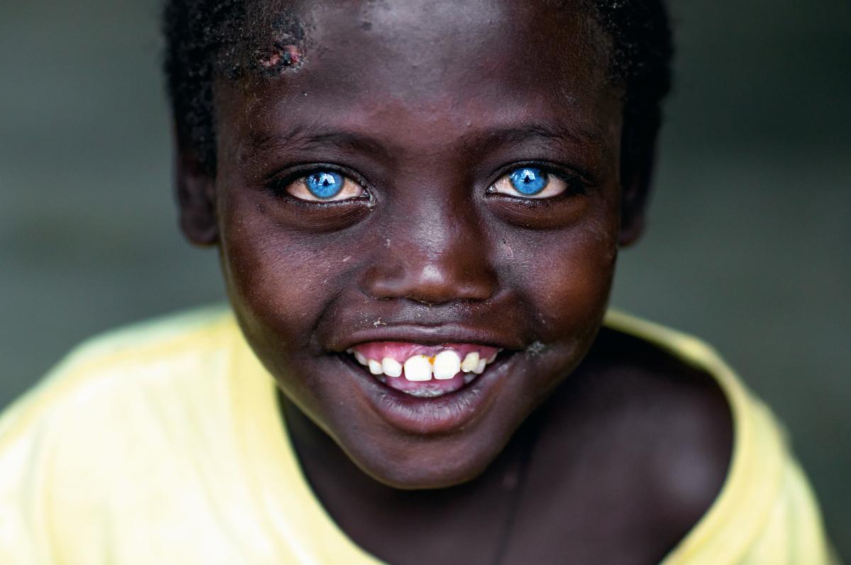 rasgos extremadamente raros ojos azules